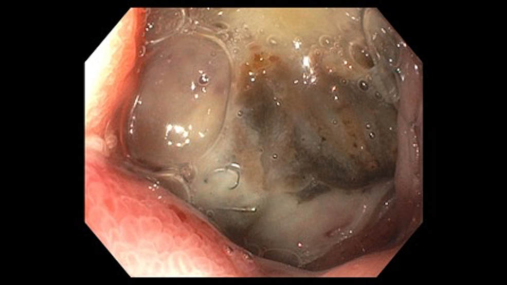 -Endoscopic-image-shows-visible-arterial-coiling-throughout-the-base-of-a-cratered-duodenal-ulcer.