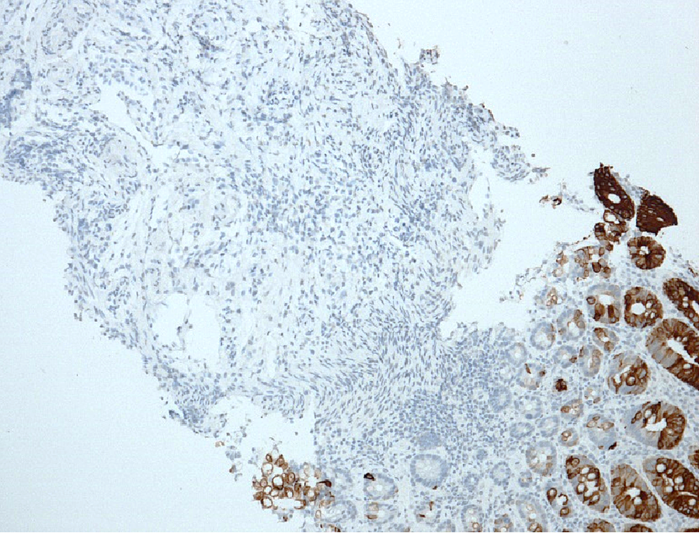 Immunohistochemical-staining-for-special-adenine-thymine-rich-sequence-binding-protein-2-(SATB2)-of-the-colonic-biopsy-samples.-The-colonic-epithelium-is-stained,-while-the-tumour-cells-in-the-submucosa-are-not,-confirming-that-the-tumour-originated-outside-the-colon