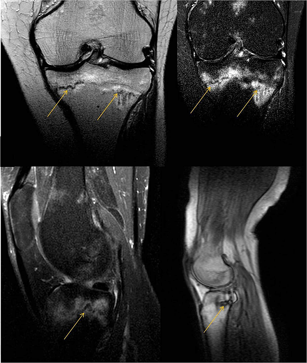 MRI-of-the-left-knee.-The-yellow-arrows-point-to-insufficiency-fracture-lines.-Edema-is-obvious-around-the-fracture-lines.
