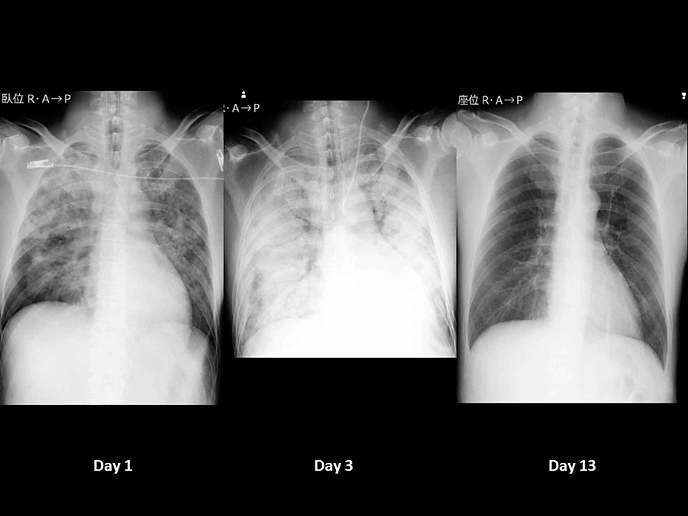 Time-course-of-chest-X-ray
