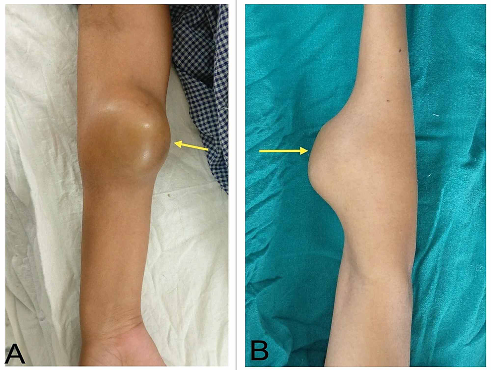 Clinical-picture-of-the-swelling.