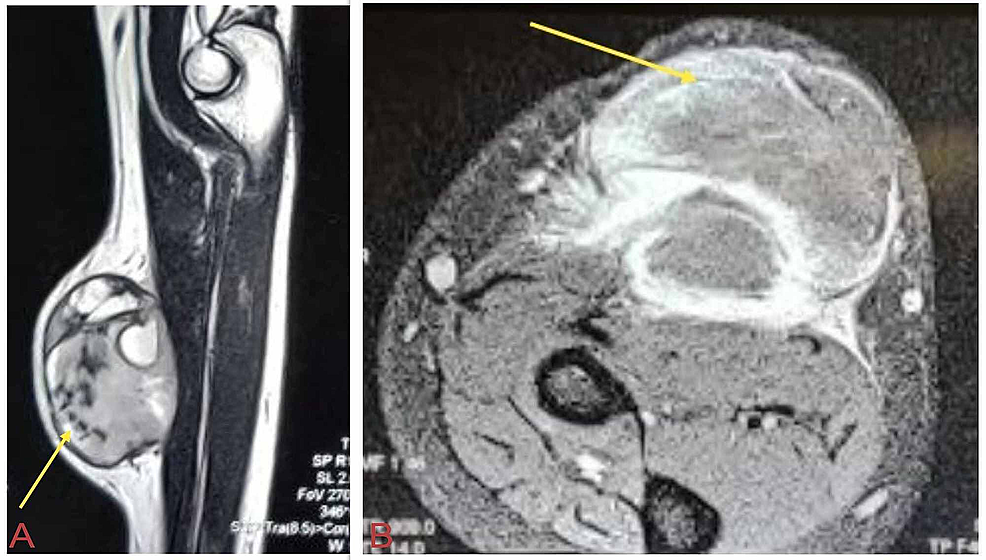 MRI-shows-subcutaneous-enhancing-soft-tissue-lesion-with-internal-hemorrhagic-and-necrotic-components-involving-the-flexor-carpi-radialis-muscle.
