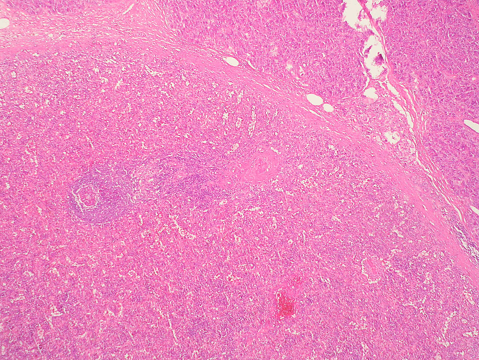 Encapsulated-splenic-tissue-well-differentiated-from-the-adjacent-pancreas