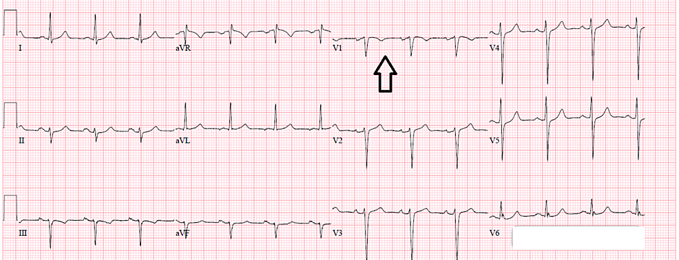 EKG-showing-non-ST-elevation-myocardial-infarction-(NSTEMI),-indicated-by-inverted-T-waves-(see-arrow)