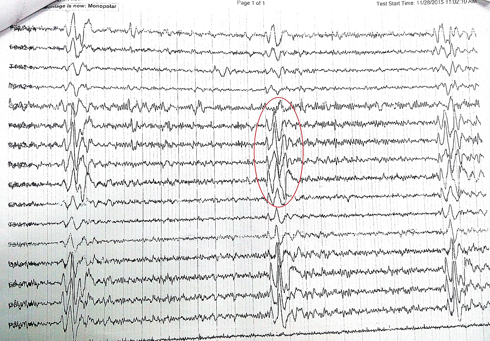 Electroencephalogram-(EEG)-revealed-a-slow-background-with-periodic-discharges-suggestive-of-Radermecker-complexes,-recurring-at-regular-intervals-of-every-8-10-seconds.