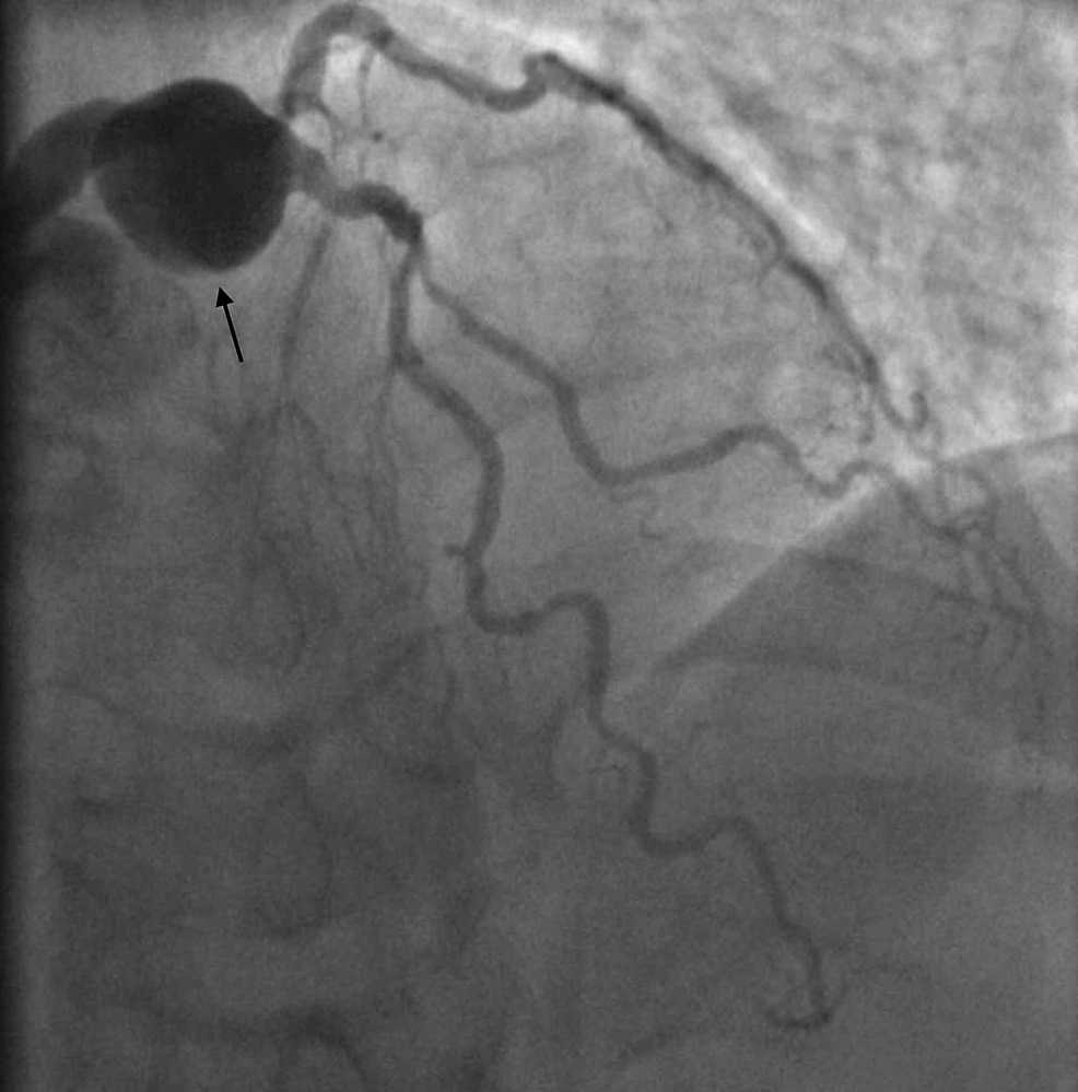 Left-heart-catheterization-RAO-cranial-view-showing-left-main-coronary-artery-aneurysm-and-75%-stenosis-in-the-first-diagonal.