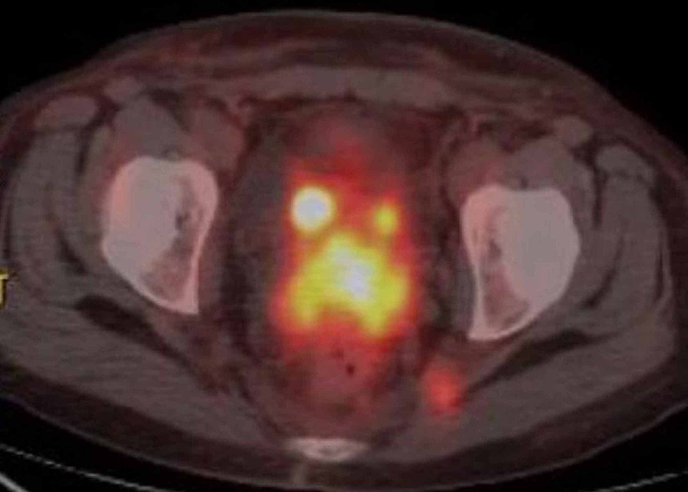 PET-CT-scan-of-the-pelvic-shows-focal-area-of-marked-hypermetabolic-activity-in-the-cervix