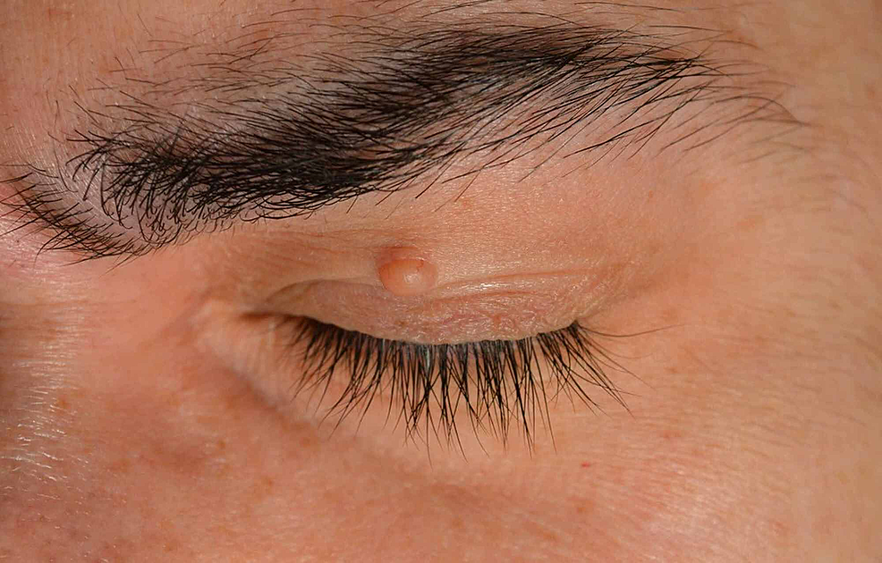 Skin-colored-nodule,-smooth-surface-on-the-left-upper-eyelid,-6-x-3-mm-in-size.