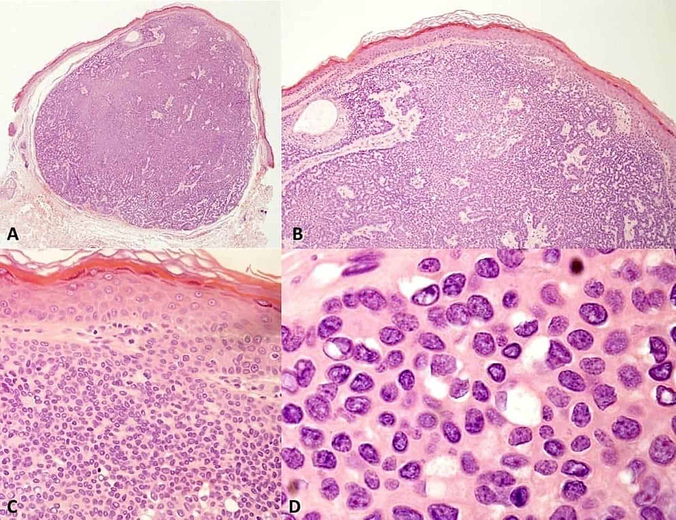 A,-Well-circumscribed,-totally-excised-tumor-with-lobulated-growth-pattern,-with-ticked-cords-of-tumor-cells-that-surround-a-vascular-and-fibrotic-stroma-(hematoxylin-eosin-stain-(H&E),-4x).-B,-The-tumor-is-connected-to-the-overlying-epidermis-and-extends-into-the-papillary-and-reticular-epidermis.-Circumscribed-lobulated-growth-pattern-is-observed,-with-thicket-cords-of-tumor-cells-that-surround-a-vascular-a-fibrotic-stroma,-(H&E,-10x).-C,-The-tumor-is-composed-of-small-cuboidal-keratinocytes-with-small-bland-nuclei-(small-nuclei-showing-a-uniform-chromatin)-(H&E,-40x).-D,-Small-ductal-lumina-with-ducts-are-often-found-(H&E,-100x).