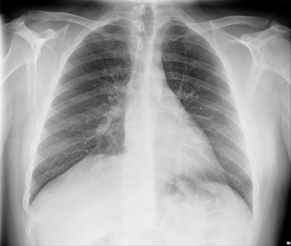 Normal-chest-X-ray-of-the-patient
