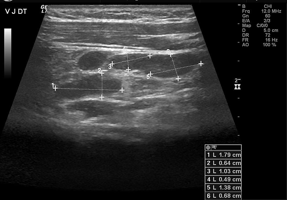 Cervical-ultrasound-of-the-patient