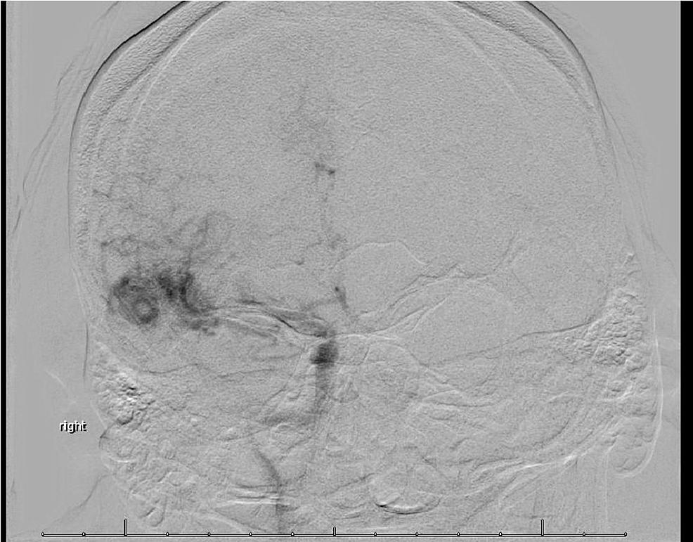 Preoperative-Anteroposterior-Angiography