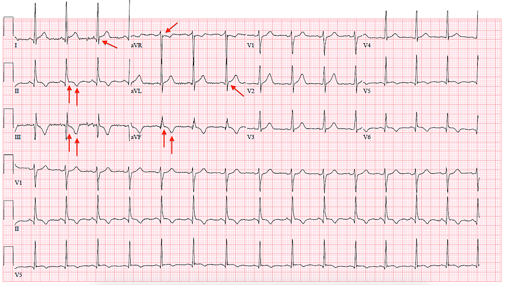 Electrocardiograph-(ECG)-of-the-patient-with-coronavirus-disease-2019-(COVID-19)