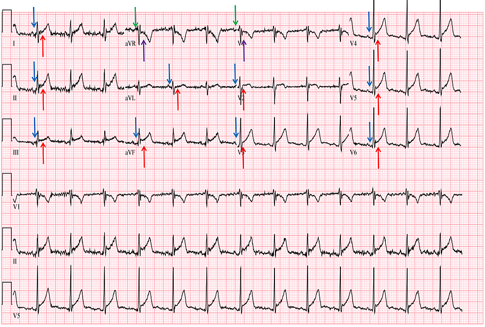 Acute-pericarditis-electrocardiographic-findings-of-diffuse-ST-elevations-(red-arrows)-and-PR-depression-(blue-arrows)-in-all-leads-except-aVR-and-V1,-which-show-reciprocal-ST-depression-(purple-arrows)-and-PR-elevation-(green-arrows).