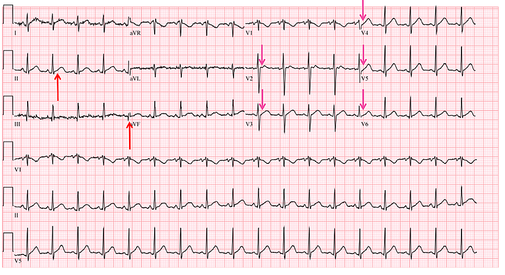 When-compared-with-the-prior-electrocardiogram,-ST-segments-are-less-elevated-in-the-inferior-leads-(red-arrows)-and-no-longer-elevated-in-the-anterior-leads-(pink-arrows).