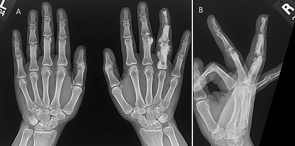Plain-X-ray:-A---Bilateral-hands.-B---Right-hand.