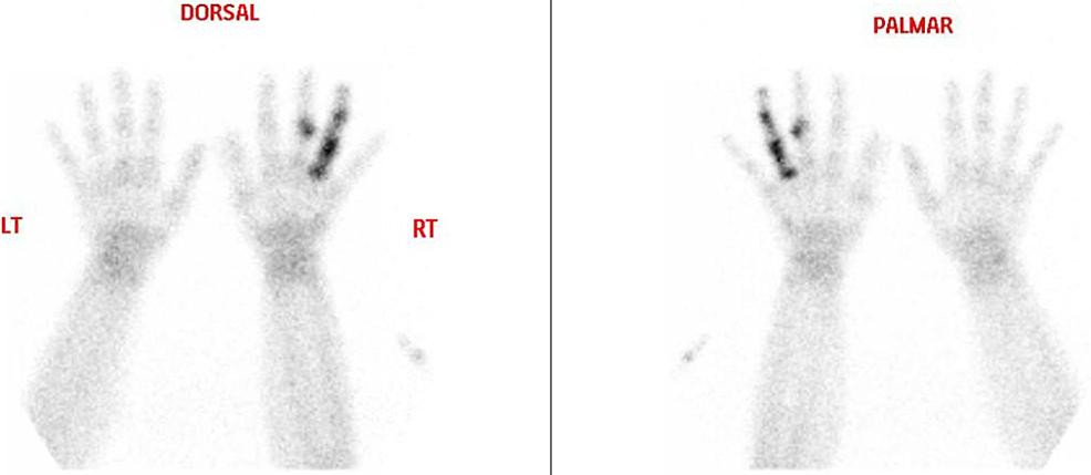 Bone-scan-of-the-hands.