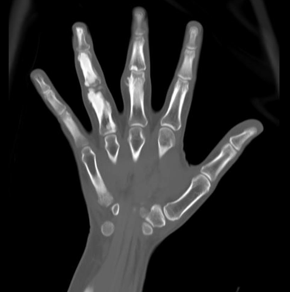 CT-scan-of-the-right-hand.