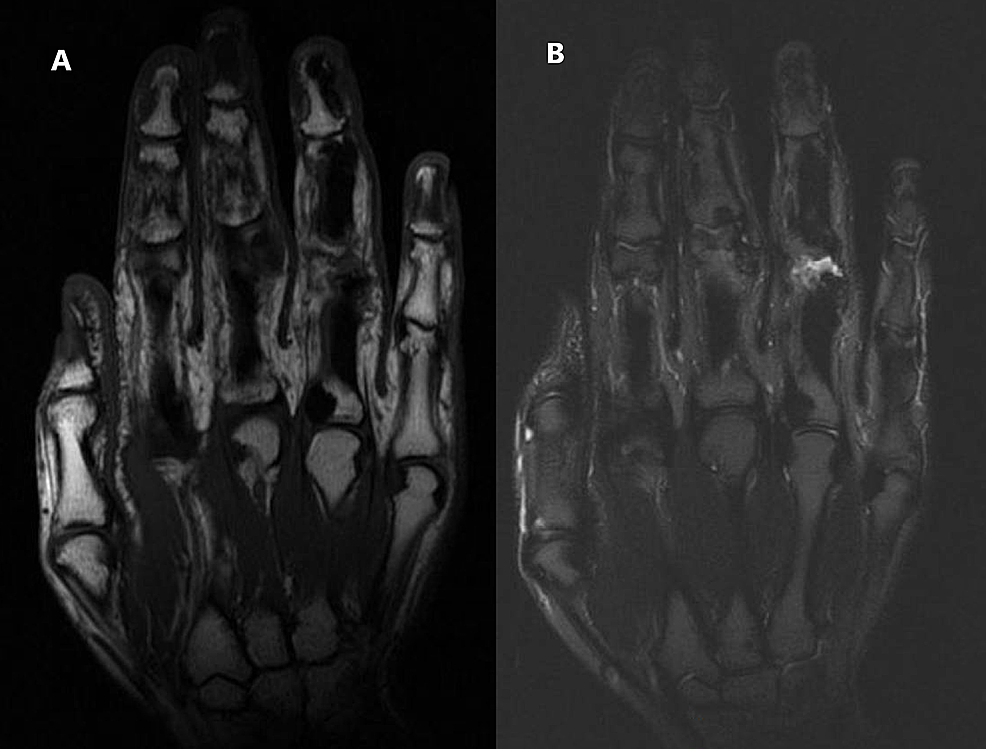 MRI-of-the-right-hand.