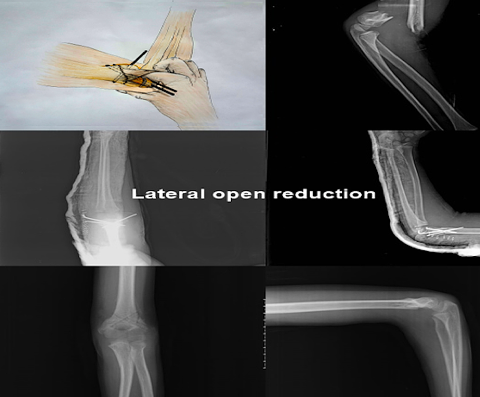 Lateral-Open-Reduction