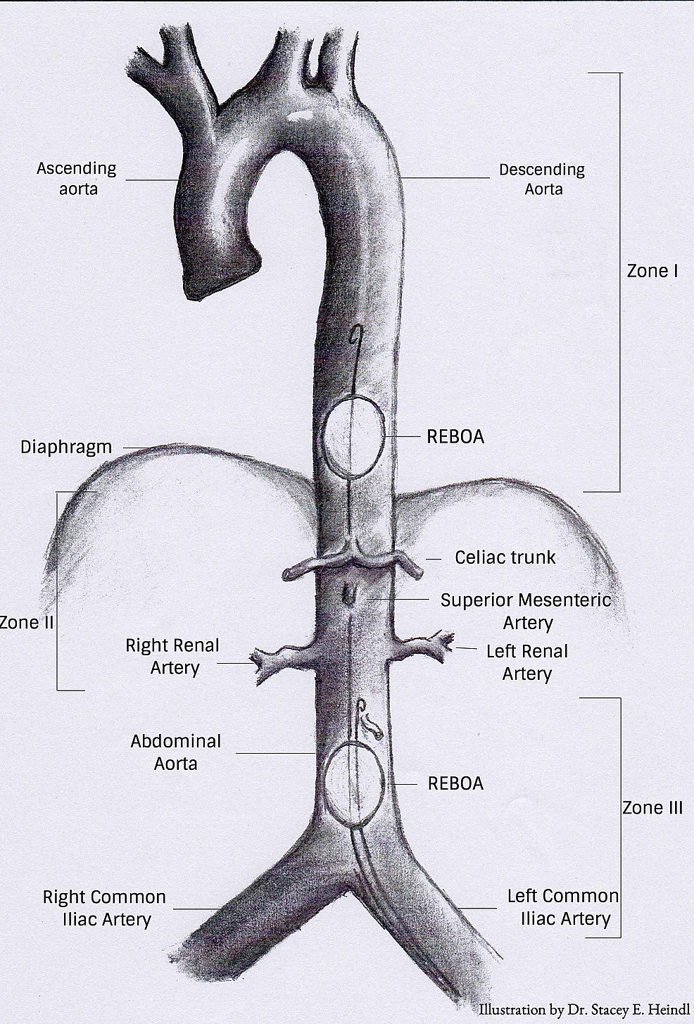 Zones-of-aortic-occlusion