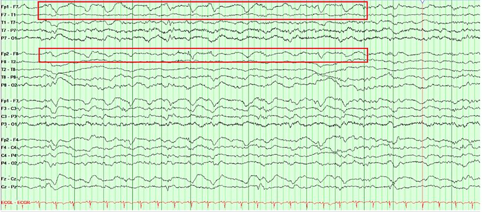 A-longitudinal-bipolar-montage-(double-banana)-continuous-electroencephalogram-(cEEG)