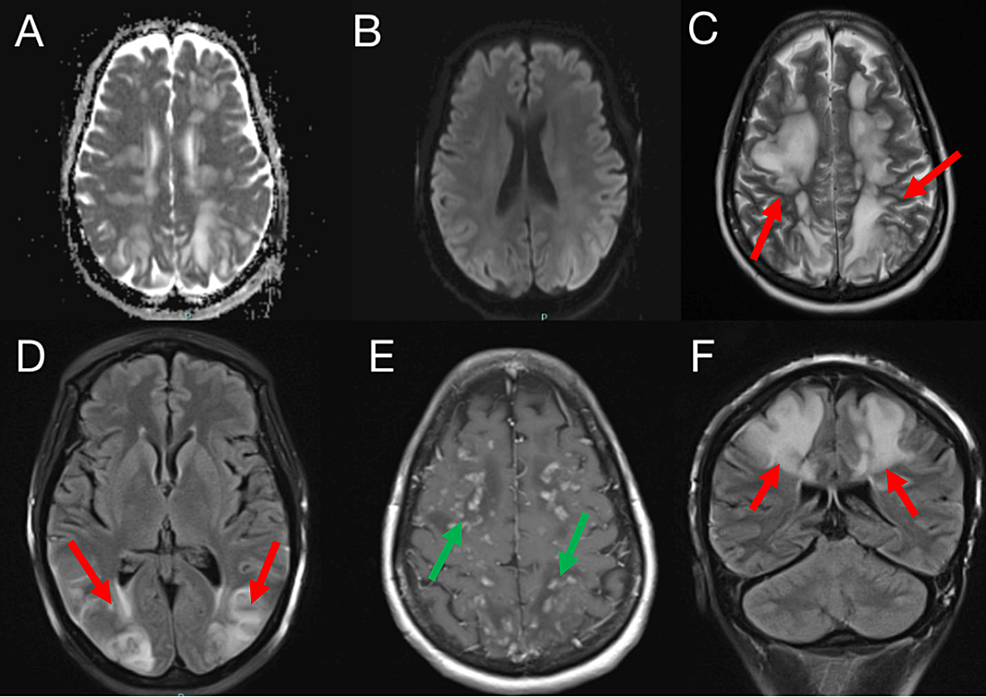 MRI-of-the-brain-with-and-without-intravenous-contrast:-A-(axial-ADC),-B-(axial-DWI),-C-(axial-T2),-D-(axial-T2-FLAIR),-E-(axial-T1-with-contrast)-and-F-(coronal-T2-FLAIR)