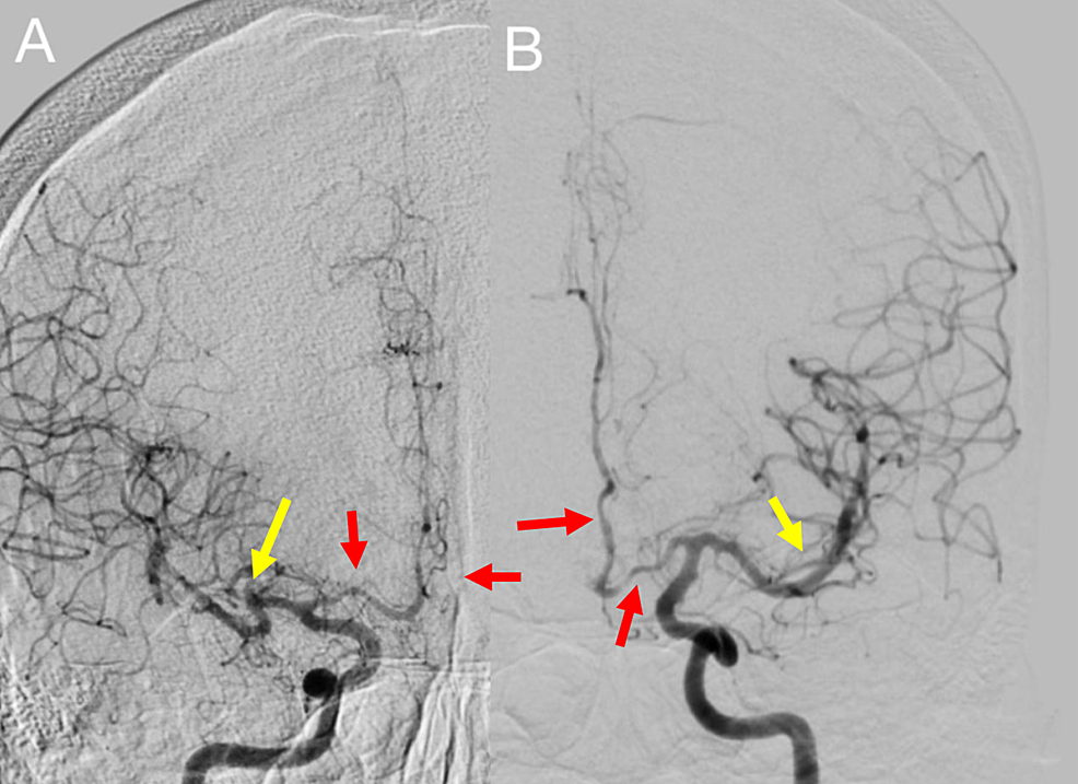Digital-subtraction-angiogram-of-the-bilateral-internal-carotid-arteries-(ICA).-A:-right-ICA,-B:-left-ICA