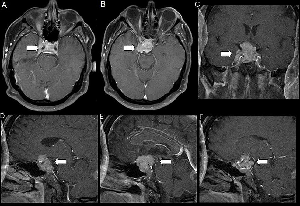 Contrast-Enhanced-Brain-Magnetic-Resonance-Imaging-(MRI)-on-Presentation