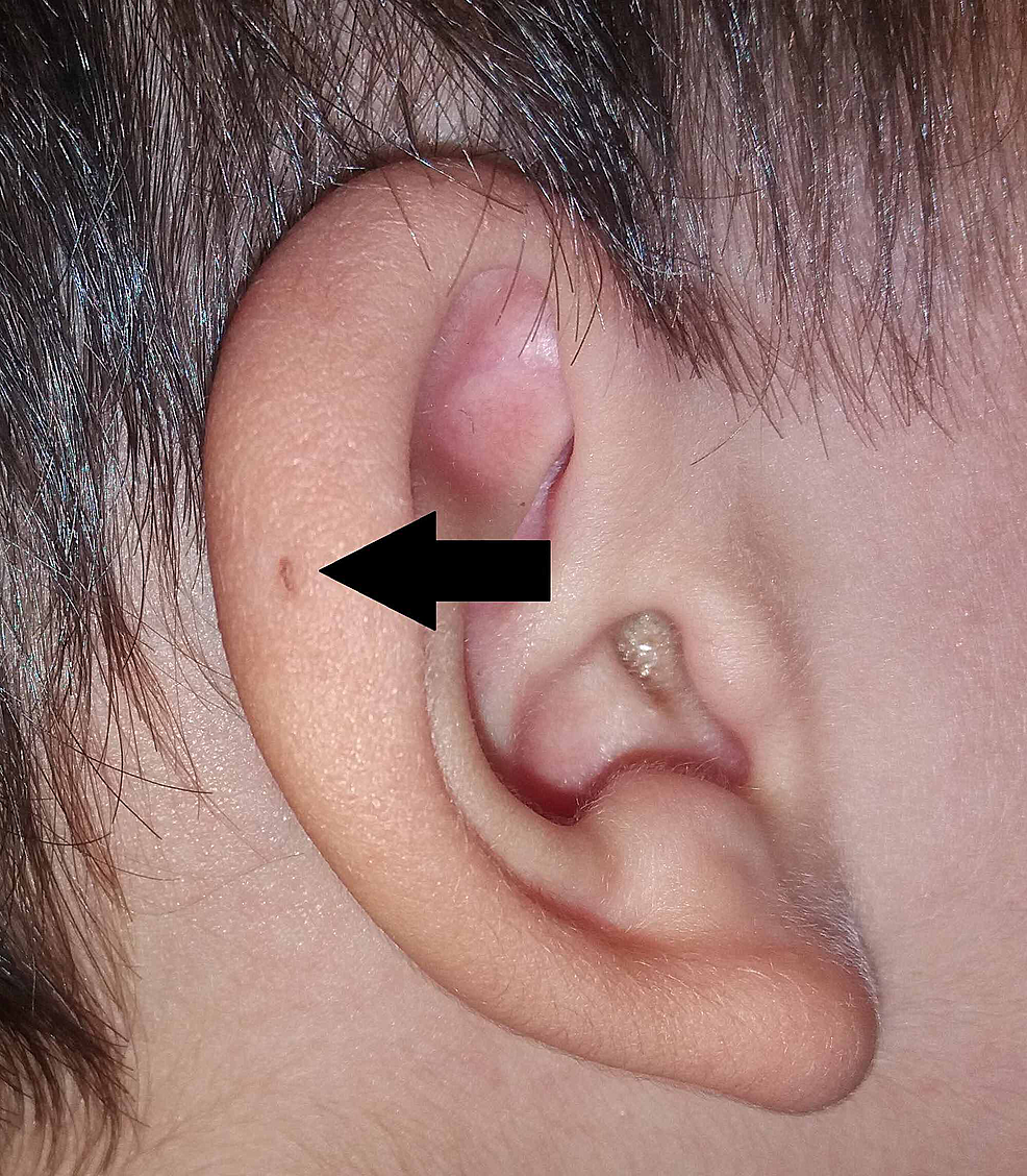 Variant-of-PAuS-on-the-auricular-helix-(arrow).