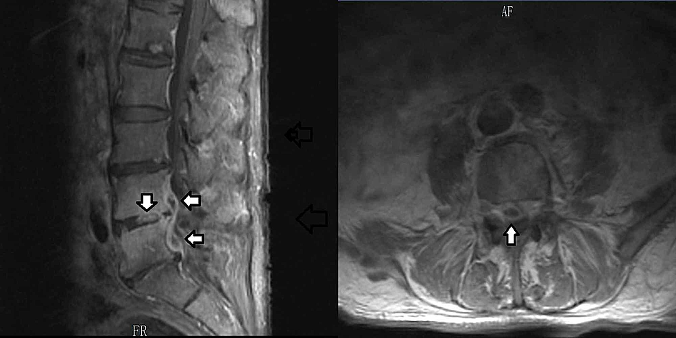 MRI-of-the-L-spine