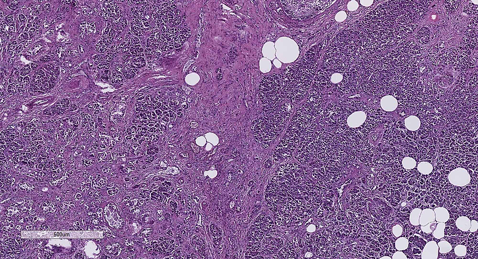Fibrosis-and-lipomatosis-of-the-pancreas,-H&E-stain,-original-magnification-x40