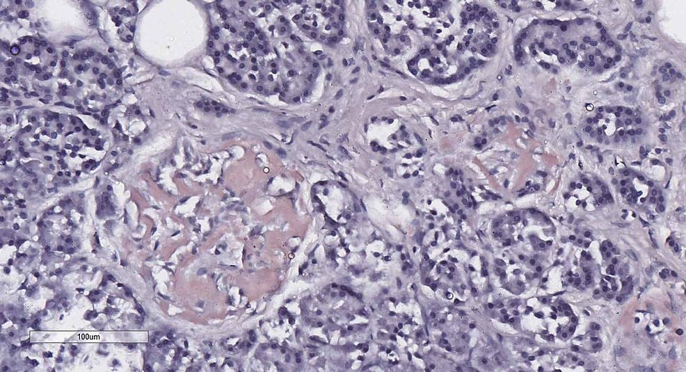 Pancreatic-Langerhans-isle-amyloidosis,-Congo-red-stain,-original-magnification-x200