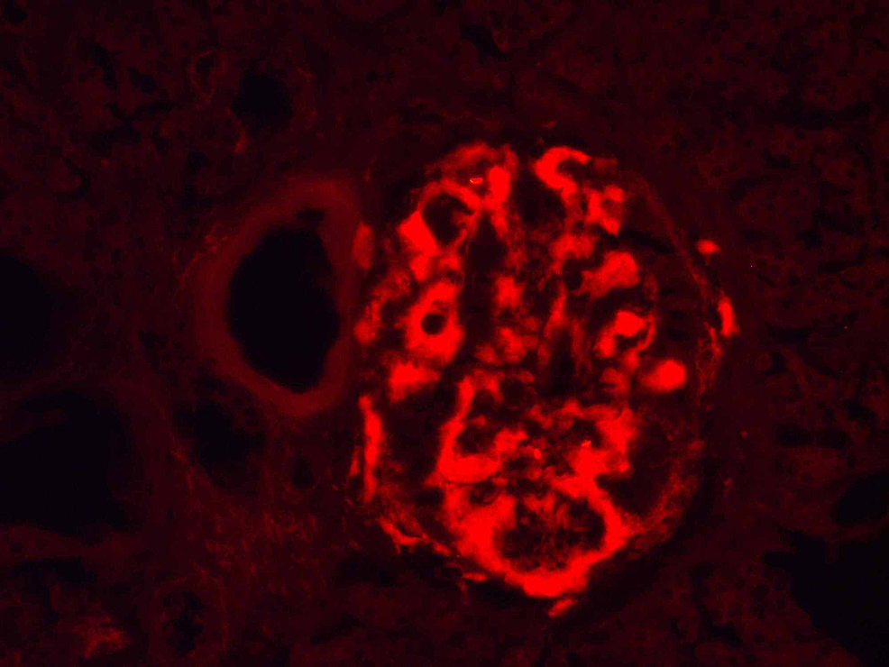 Pancreatic-Langerhans-isle-amyloidosis,-Congo-red-staining-observed-with-fluorescent-microscopy,-original-magnification-x200