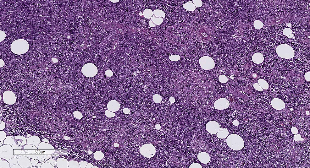 Diffuse-pancreatic-changes-associated-with-diabetes-–-fibrosis,-lipomatosis-and-islet-amyloidosis,-H&E-stain,-original-magnification-x40