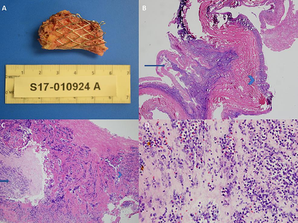 Gross-and-microscopic-histopathologic-examination-of-explanted-transcatheter-pulmonary-valve-(Case-1)
