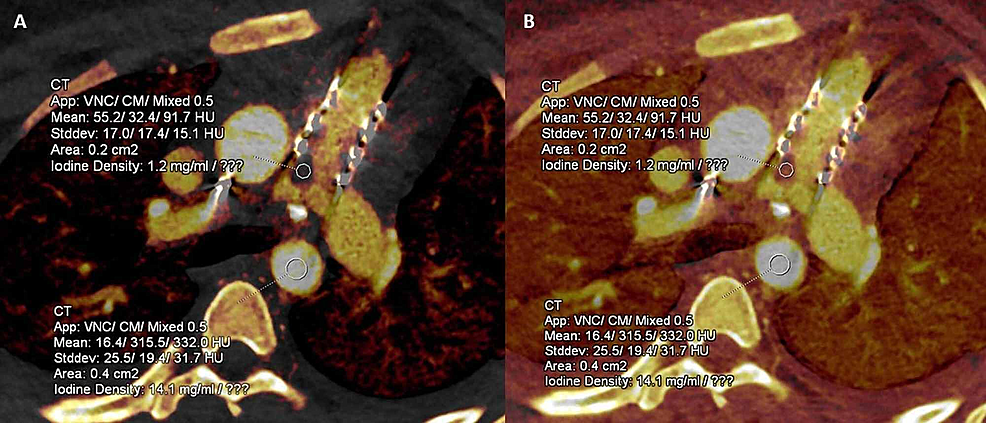 Iodine-quantitative-perfusion-map-images-in-a-patient-with-infective-endocarditis-