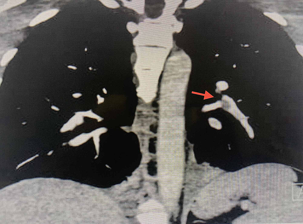 Coronal-slice-of-the-computed-tomography-pulmonary-angiography-showing-segmental-and-subsegmental-filling-defects-in-the-left-pulmonary-artery.