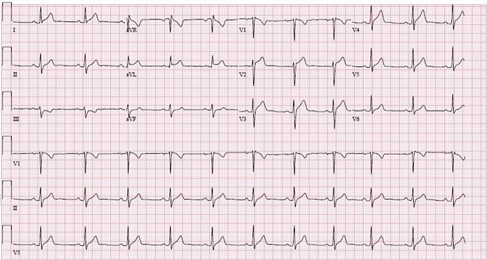 Twelve-lead-surface-EKG-with-ST-elevations-in-leads-I-and-aVL-(December-12,-2019)