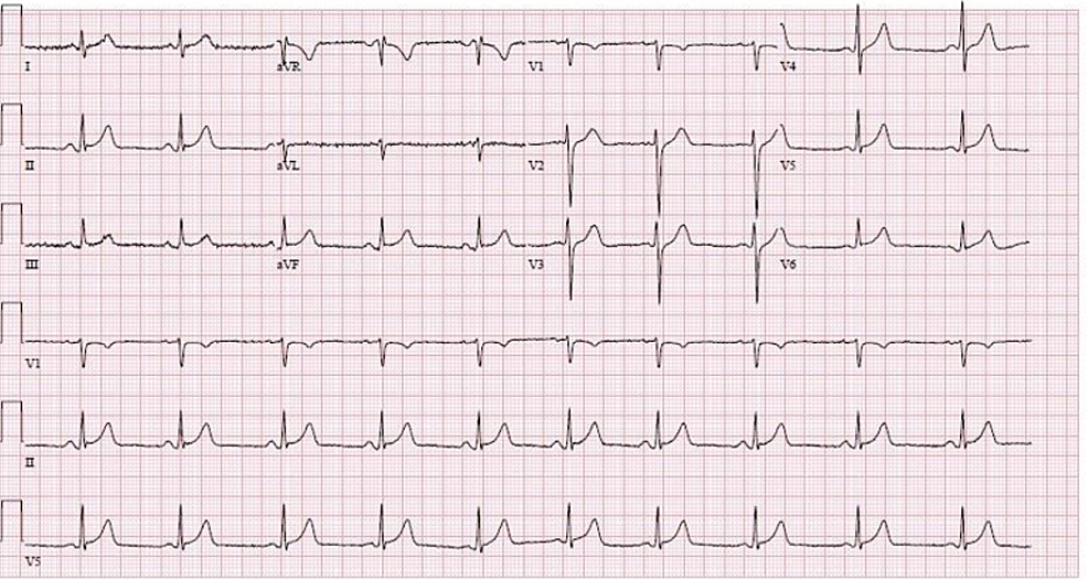 Twelve-lead-EKG-with-1-mm-ST-elevations-in-leads-II,-III,-aVF,-V5,-and-V6-(December-24,-2019)