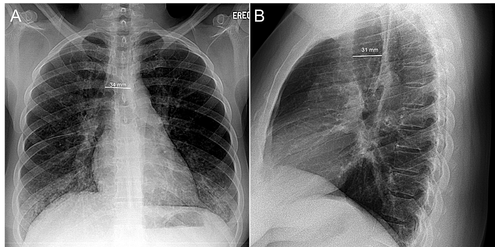 Posterior-anterior-(A)-and-lateral-(B)-chest-radiographs
