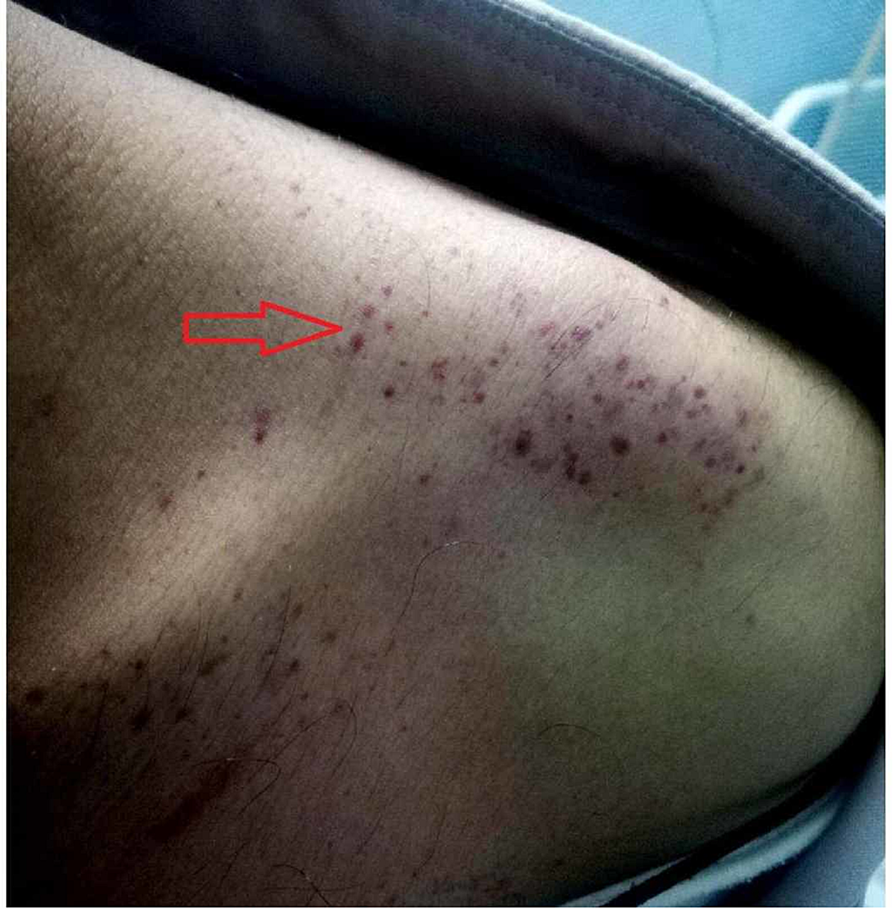 Multiple purpura and petechiae on the left shoulder of a dengue fever patient