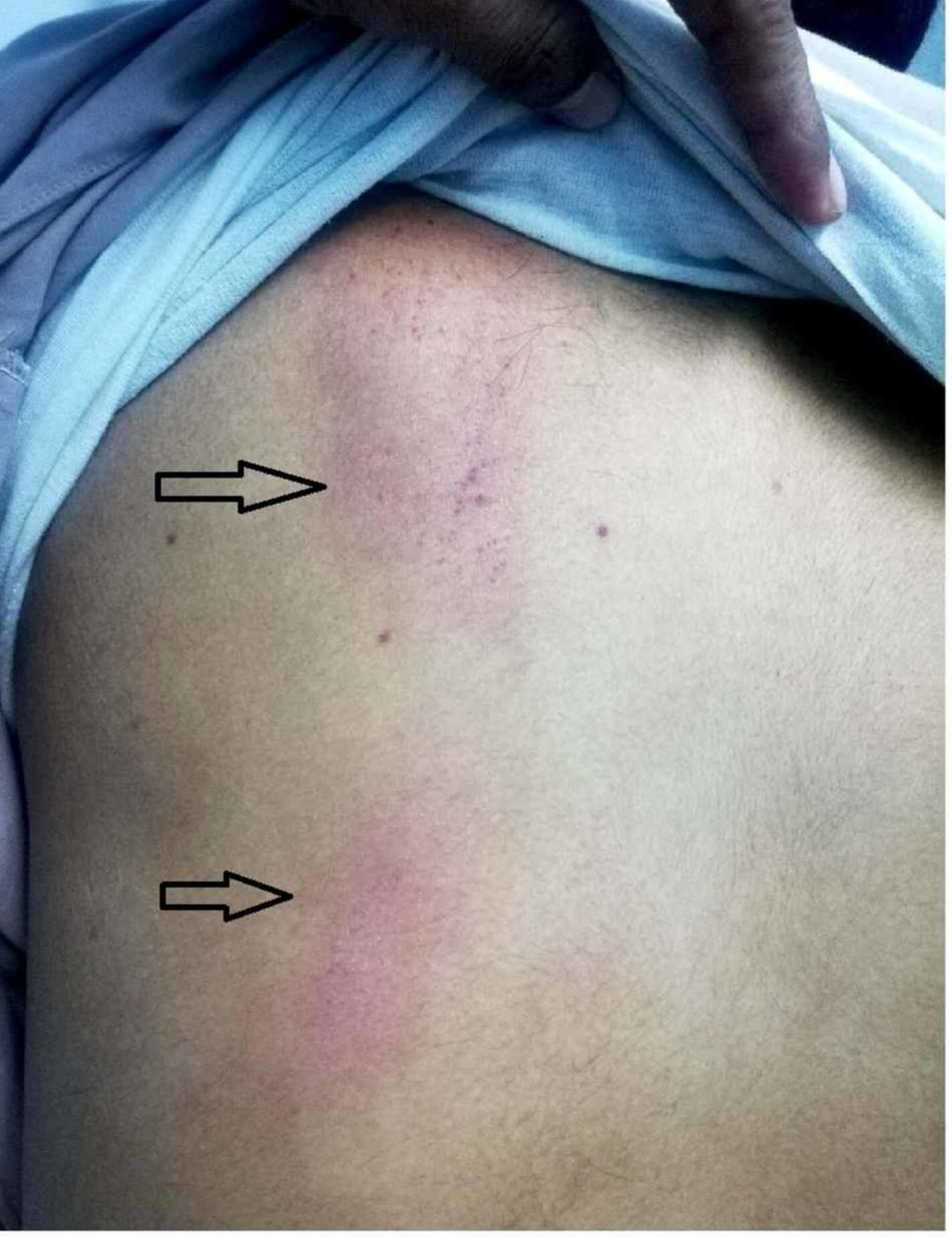 Cureus | A Case of Dengue Fever With Hemorrhagic Manifestations