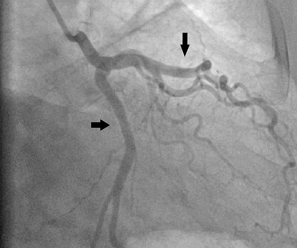Selective-angiography-of-left-coronaries-(arrows-showing-non-obstructive-left-anterior-descending-and-circumflex-arteries)