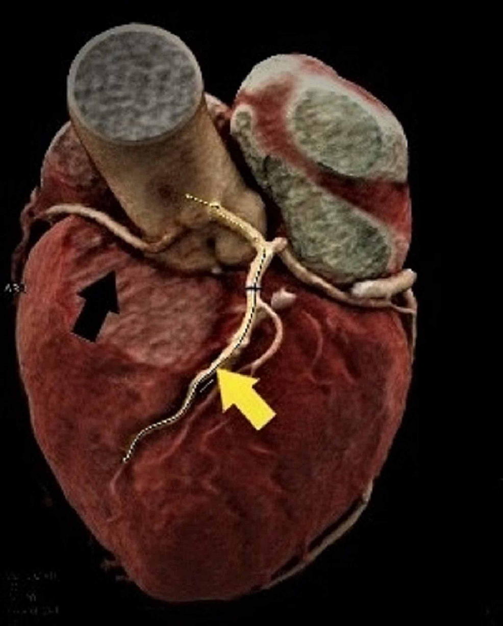Three-dimensional-CT-imaging-of-the-origin-and-course-of-the-right-coronary-artery-(black-arrow)-and-the-left-coronary-artery-(yellow-arrow)