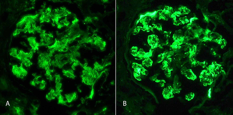 Immunofluorescence-Microscopy
