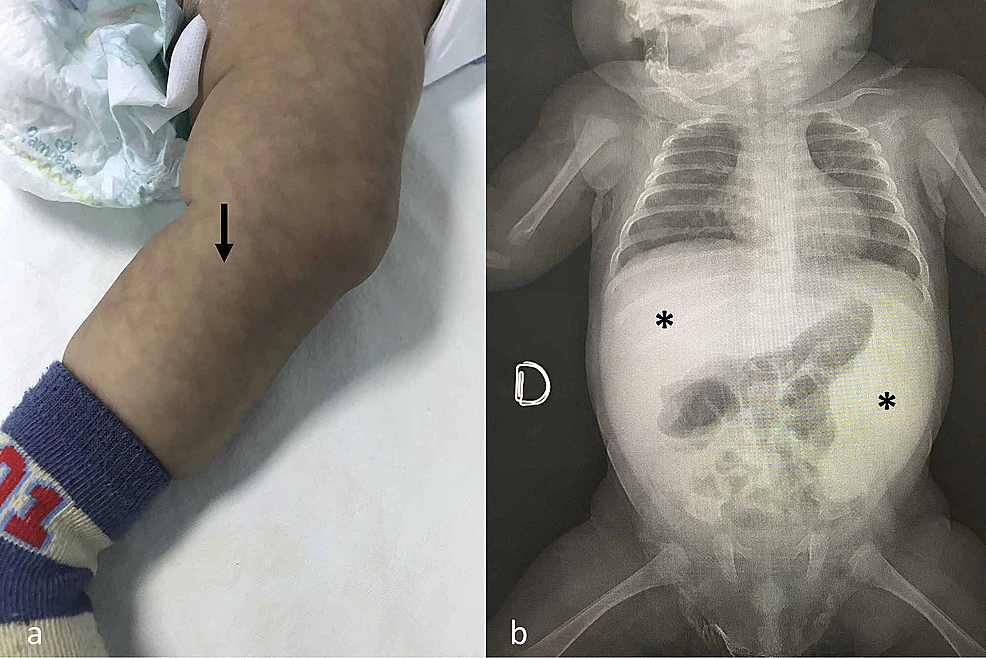The-patient-on-admission-to-the-community-hospital-had-(a)-mottled-skin-with-reticular-aspect-(arrow)-and-(b)-severe-hepatosplenomegaly-also-visible-on-abdominal-plain-X-ray-film-(asterisks).