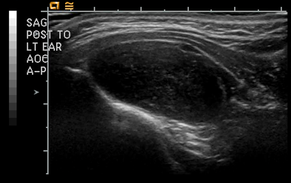 Ultrasound-imaging-of-the-solitary-fibrous-tumor