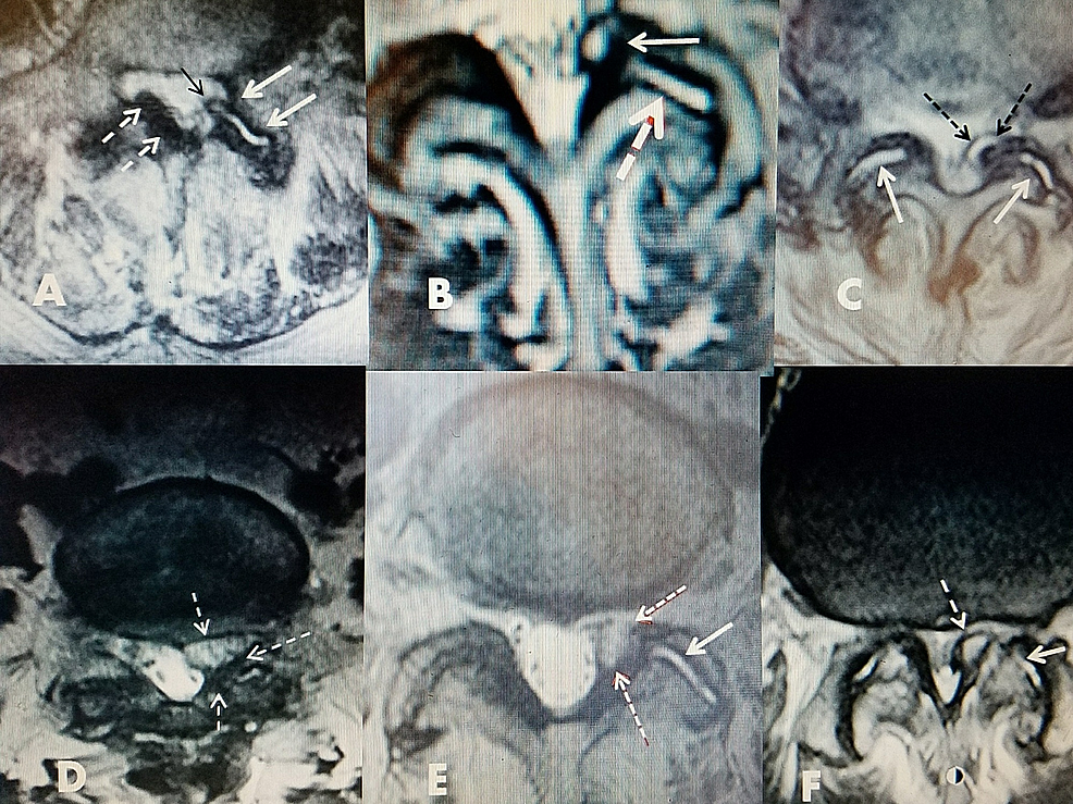 Axial-MRI-scans-showing-the-different-fluid-densities-within-the-facet-cysts