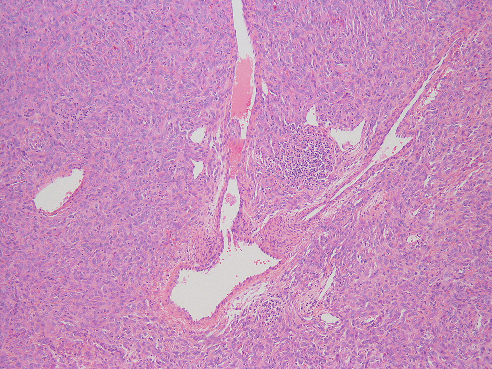Hematoxylin-and-eosin-(H&E)-stain-showing-staghorn-vessels-of-the-solitary-fibrous-tumor-(100x)